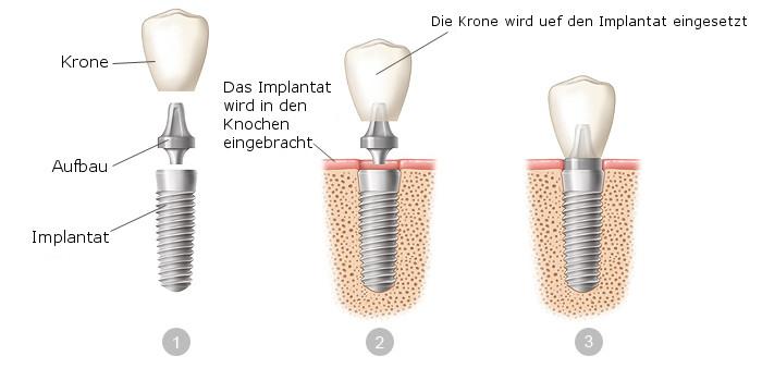 dental-implants-deu