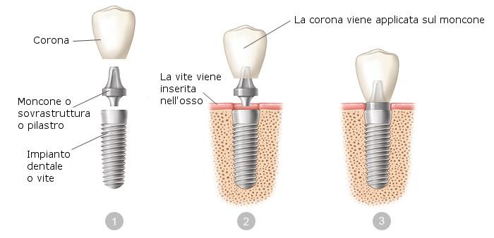 dental-implants-it