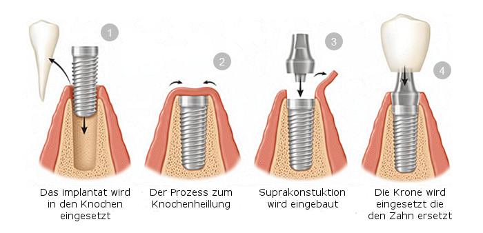 implant-procedure-deu