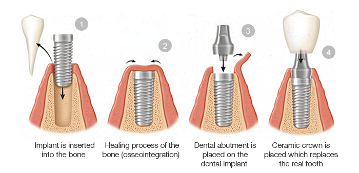 implant-procedure