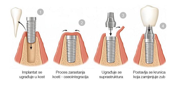 postupak-ugradnje-implantata