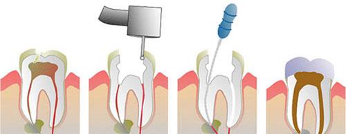 endodoncija1